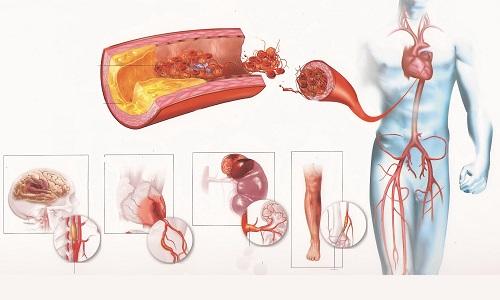 Атеросклеротический кардиосклероз сосудов