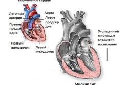 Боль в сердце из-за миокардита