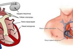 Вживление кардиостимулятора