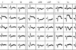 Динамика электрокардиограммы при переднем инфаркте миокарда. А – норма; Б – последовательные стадии развития инфаркта