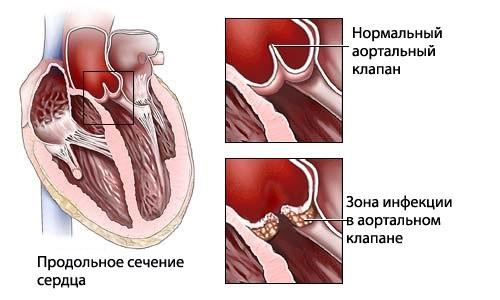 Схема инфекционного эндокардита