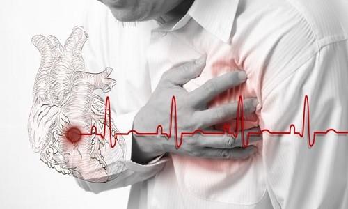 Неотложная помощь при инфаркте