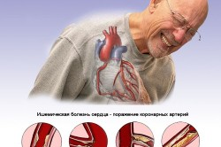 Пролапс митрального клапана с регургитацией 1 степени