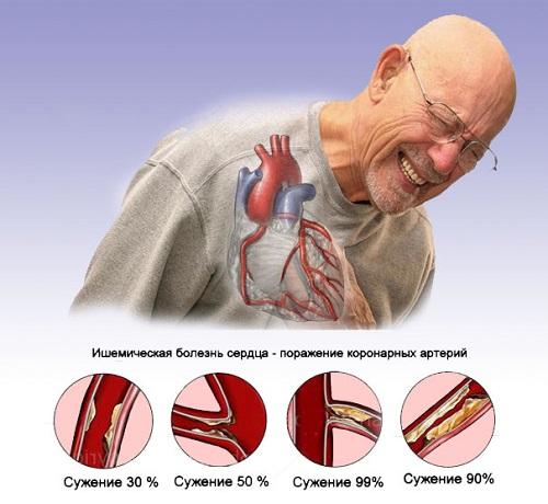 Пролапс митрального клапана 1 степени с регургитацией