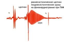 Кардиограмма сердца при ПМК