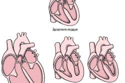 Виды кардиомиопатии