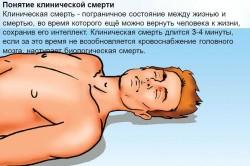 Понятие клинической смерти
