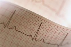 Показания ЭКГ при метаболических изменениях миокарда