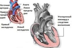 Сердце при миокардите