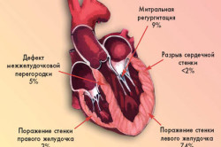 Основные причины миокардита сердца