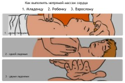 Правильное расположение рук при выполнении непрямого массажа сердца