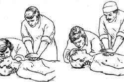 Первая медицинская помощь при инфаркте миокарда