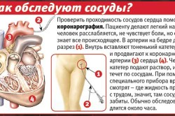 Процедура коронарографии