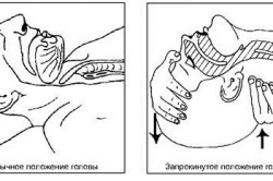 Обеспечение проходимости верхних дыхательных путей для проведения реанимационных мероприятий