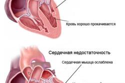 Сердечная недостаточность - причина отеков