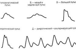 Разновидности пульса
