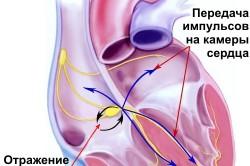 Схема тахикардии сердца