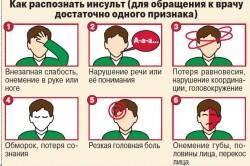 Основные симптомы инсульта