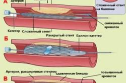 Стентирование коронарных артерий