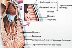 Вегетативно-дисгормональная миокардиодистрофия