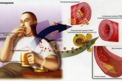 Схема образования бляшек