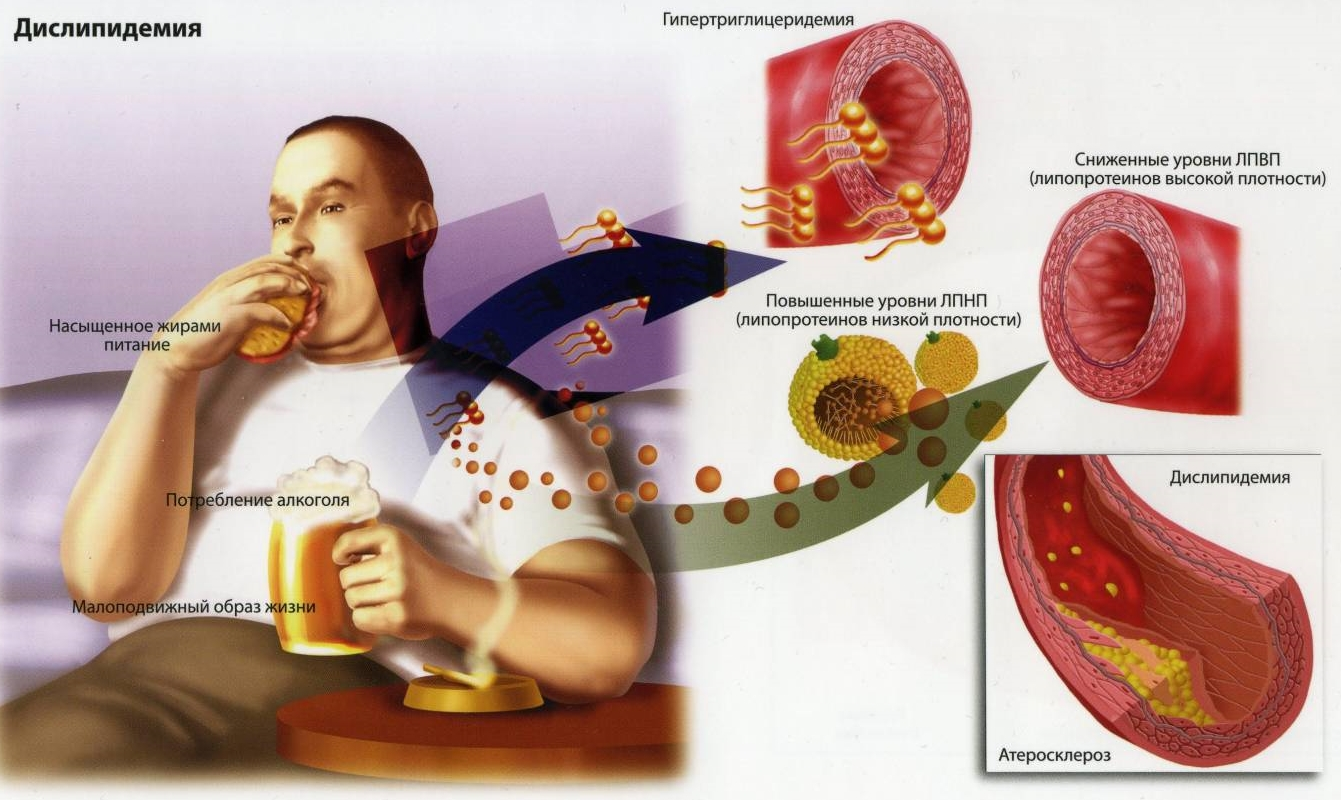 лекарственные статины от ожирения отзывы