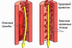 Образовение тромбов