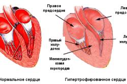 Утолщение стенок миокарда - показатель для определения границ сердца