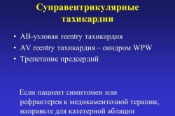 Виды суправентрикулярной тахикардии
