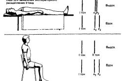 Схема выслушивания сердца в положении лежа и сидя