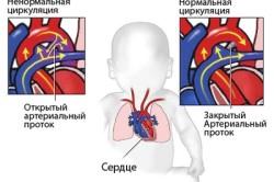 Врожденная патология сердца
