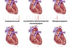 Ритмы сердца при разных заболеваниях