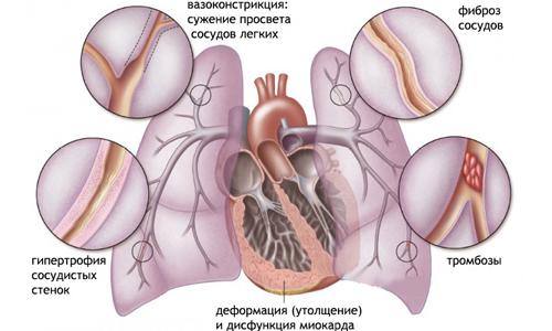 Лекарственные для лечения дисбактериоза кишечника у взрослых