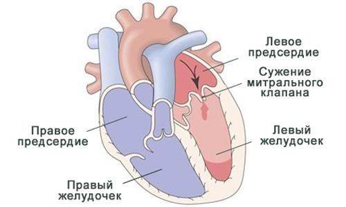 Схема митрального стеноза