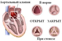 Аортальный клапан в норме и при стенозе