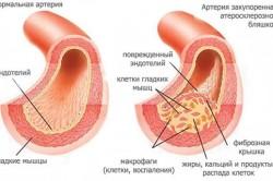Артерия, закупоренная атеросклерозной бляшкой