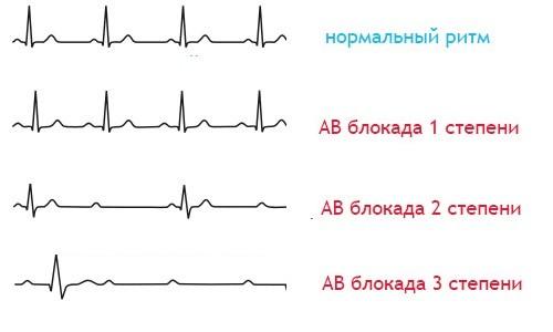 Атриовентрикулярная блокада на электрокардиограмме