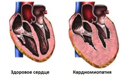 Кардиомиопатия в сравнении со здоровым сердцем