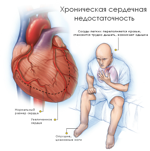 serdechnaya-gipertoniya-simptomi