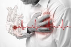Инфаркт - причина атриовентрикулярной блокады