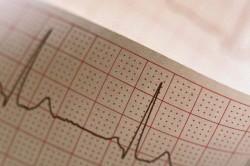 Электрокардиограмма при фибрилляции желудочков