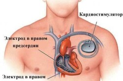 Кардиостимуляция при блокаде сердца