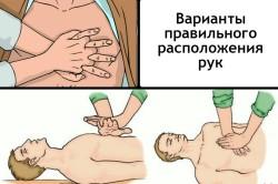 Варианты правильного расположения рук при выполнении непрямого массажа сердца