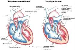 Схематическое изображение нормального сердца и с патологией
