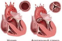 Схема аортального стеноза