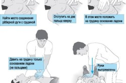 Этапы выполнения непрямого массажа сердца