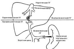 Паренхиматозная и непаренхиматозная форма портальной гипертензии